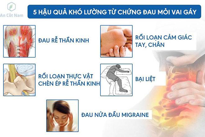 ảnh hưởng của đau mỏi vai gáy tới cuộc sống